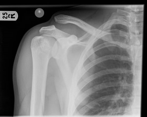 Acromoclavicular joint disruption